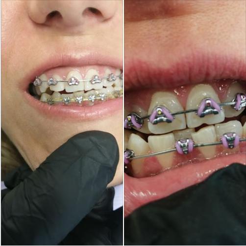 4 месеца разлика